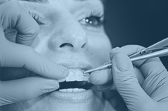 secondary-treatment-img-3