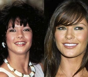 Celebrity Teeth Makeover