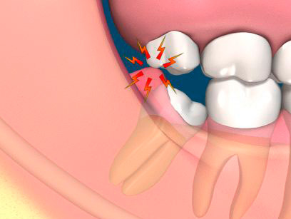 molar tooth removal