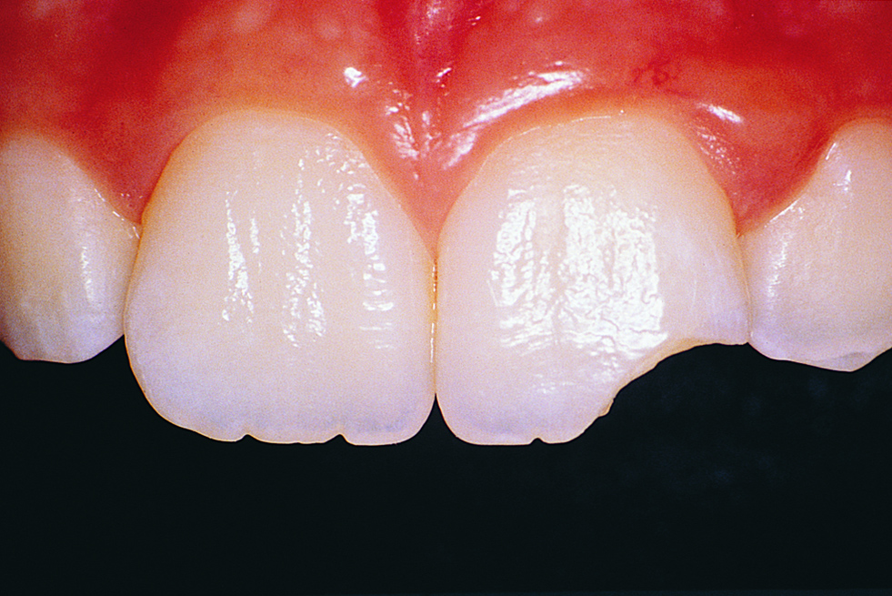 Understanding the 5 stages of tooth decay - Docklands Dental
