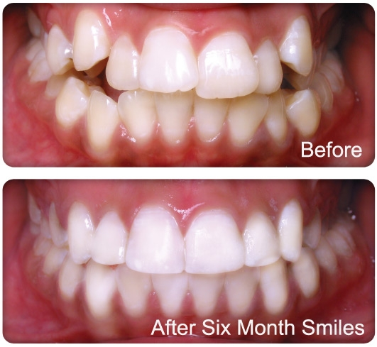 6 Month Braces Could It Be For You Docklands Dental