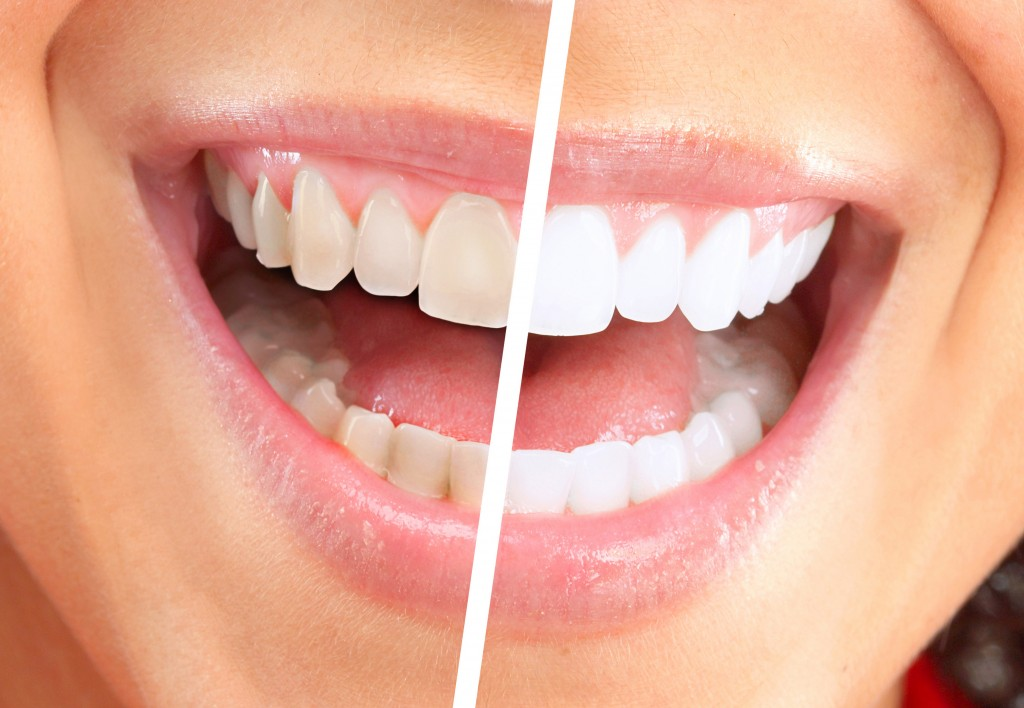 how to whiten coffee stained teeth