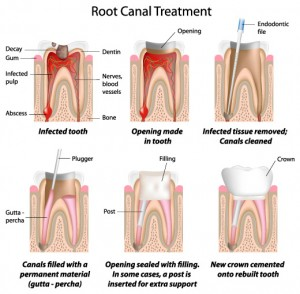 molar root canals