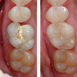 cerec-dentistry-img-2