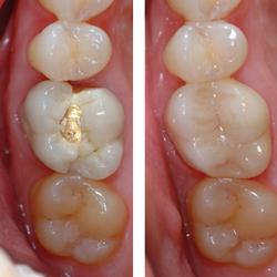 cerec-dentistry-img-2
