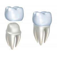 cosmetic-dentistry-img-1