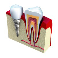 cosmetic-dentistry-img-2