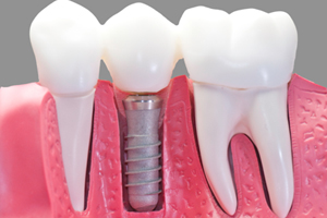dental-implants-img-1