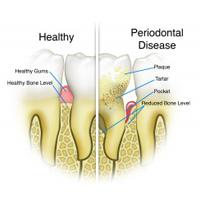 general-dentistry-img-3