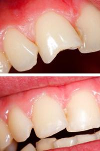 general-dentistry-img-4