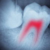 general-dentistry-img-5