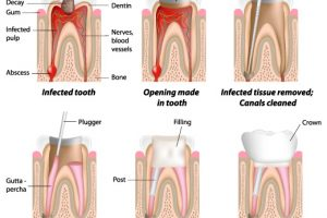 general-dentistry-img-6