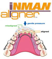 short-term-orthodontics-img-2