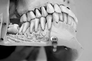 special-dentistry-img-1
