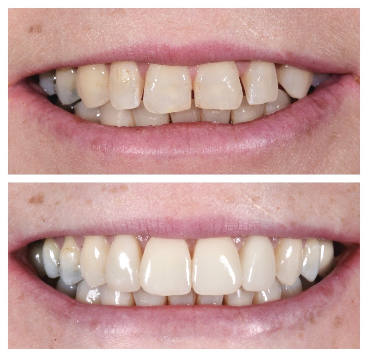 A Complete Guide To Dental Veneers - Docklands Dental